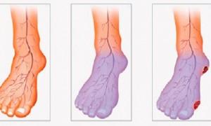 ma_circulacao_-_sintomas_e_dois_tratamentos-e1476281223858