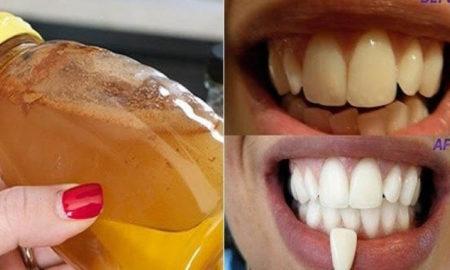 dentes_brancos